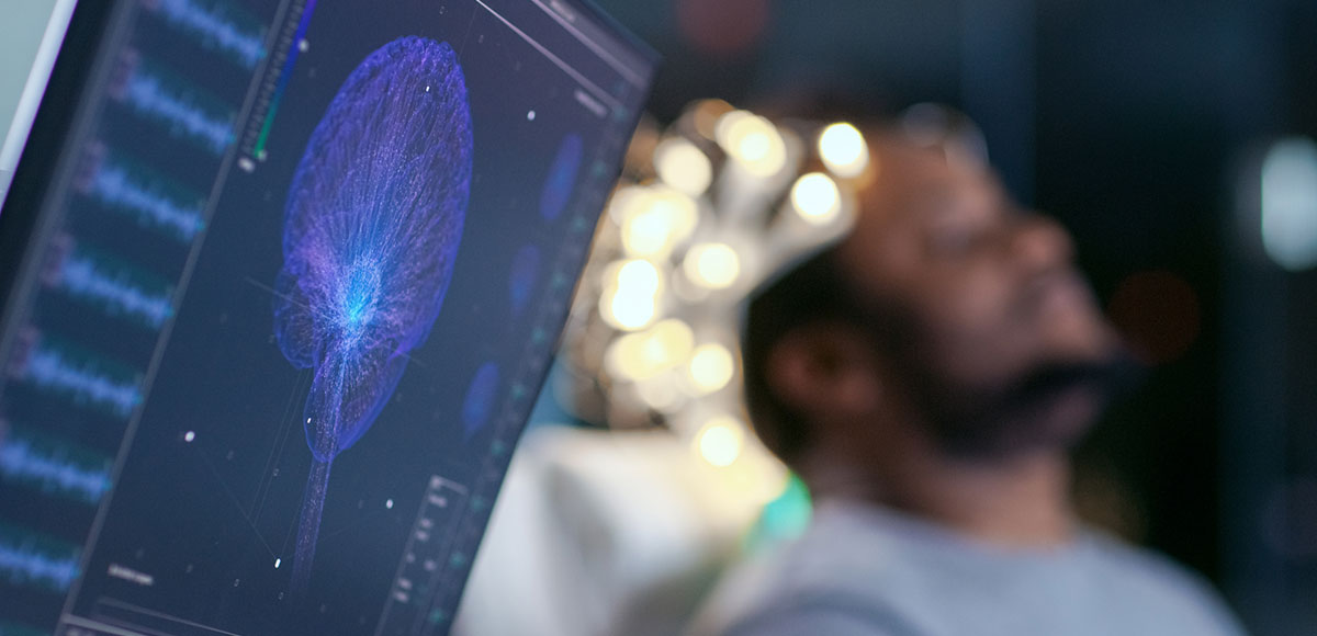 Monitor showing brain scan of patient in background during a sleep study - Mid Missouri Medical Group